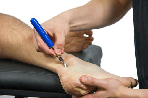 IASTM Ankle Sprain