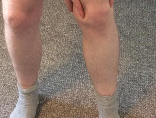 Seán's Knee Pain: Patellofemoral Pain Syndrome