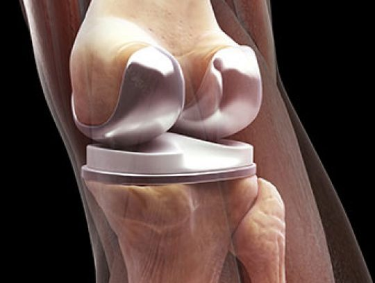 Total Knee Replacement Rehabilitation Days 1-3